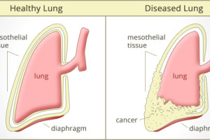 Smoking, Asbestos, and Asbestosis Increases Risk for Lung Cancer