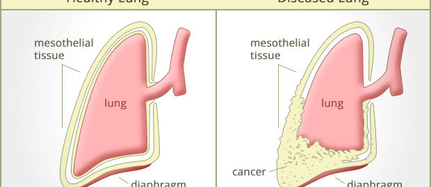 Smoking Asbestos And Asbestosis Increases Risk For Lung Cancer